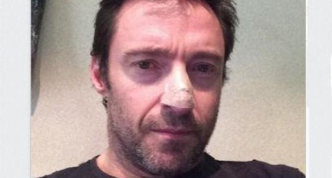 Hugh Jackman revela en Instagram que padece cáncer de piel