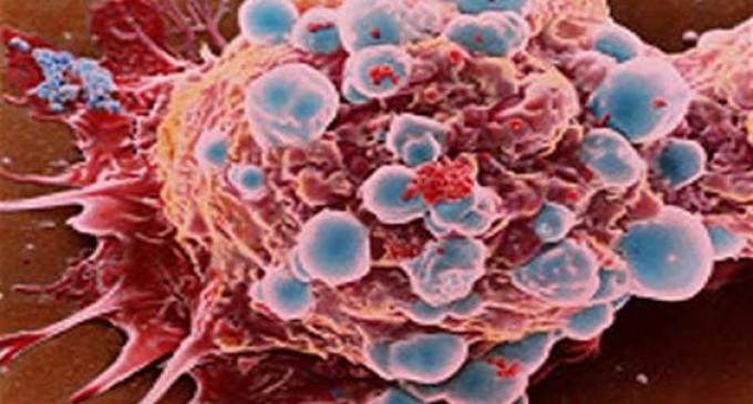 Identifican el «punto débil» de la metástasis del cáncer