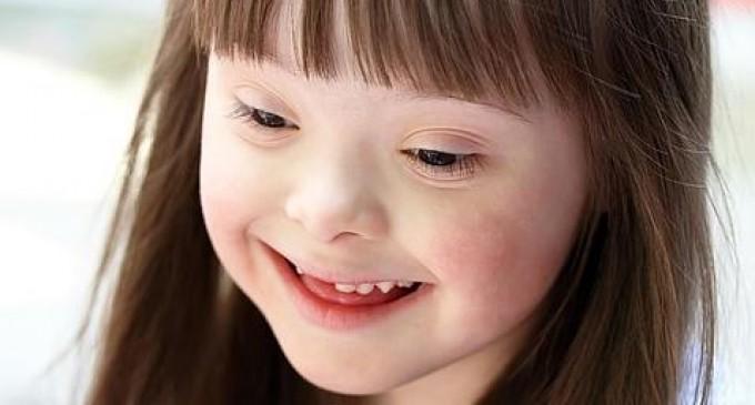Un fármaco mejora la capacidad de aprendizaje en un modelo de síndrome de Down