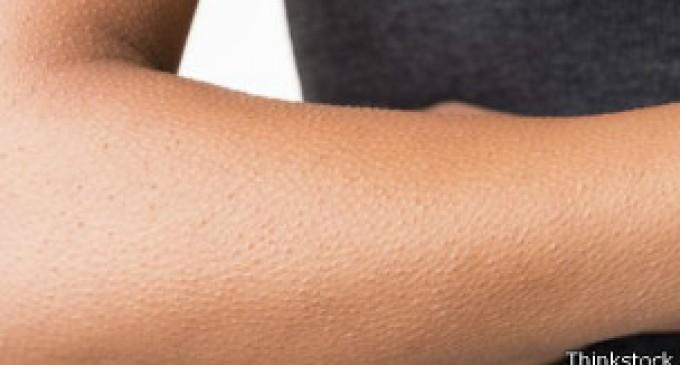Qué puede decir la piel de gallina de nuestras emociones